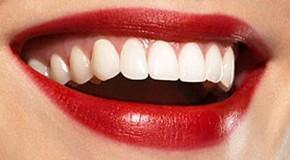 Geriausia dantų pasta jūsų dantims