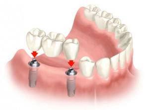 Implantai per 24 val